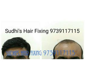 Hair fixing Hubli-Dharwar