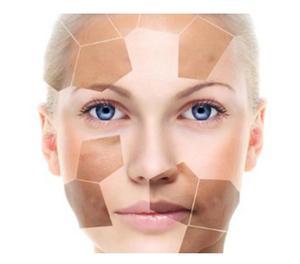 Skin whitening treatment in Bangalore,India Bangalore