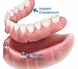 Dental Clinic | Best Dentist Implant in Ahmedabad Gujarat