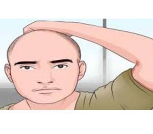 Hair Transplant Surgery in Delhi New Delhi