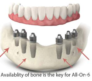 all-on-6 dental implant in India New Delhi