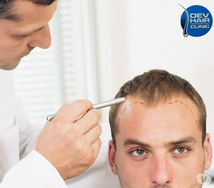 Dev Hair Clinic - Hair Transplant Clinic in ahmedabad