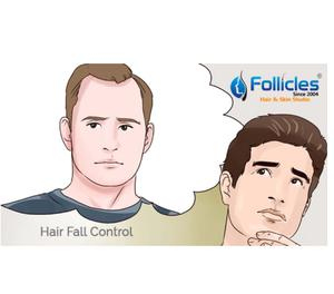 Hair fall control hospitals in Hyderabad Hyderabad