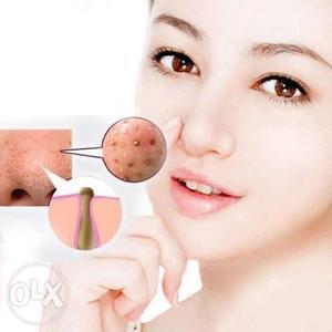 Nose Blackhead Remover Mask Pore Cleanser, Black