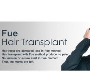 Best Hair Transplant Clinic in Chandigarh Chandigarh