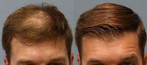 Hair Transplant in India | Indo Canadian Hair Transplant