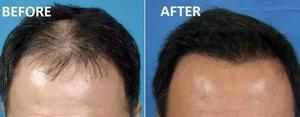 PRP Hair Loss Treatment in Indore