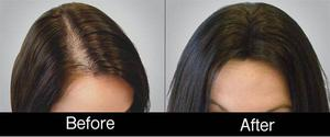 Hair Loss Treatment By PRP Hair Loss Treatment