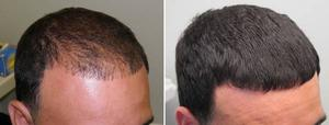Hair Loss Treatment In Avenues Ahmedabad