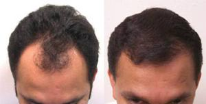Hair Loss Treatment in Ahmedabad