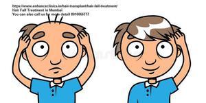 Free consultation of Best Hair Transplant Surgeon in Delhi