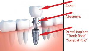Dental Clinic in South Delhi | Crown and Roots