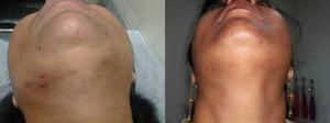 Low Cost Laser Hair Removal in Gurgaon