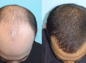 Get Permanent Solution For Hair Thinning By PRP Hair Loss