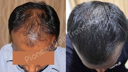 Best Hair Transplant Bangalore-Pioneer Advanced Hair