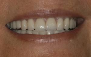 Dental Implants Treatment in UK