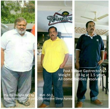 Topmost Weight Loss Clinic Pune - Presize Clinic