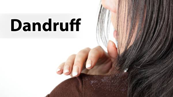 How to Get Rid of Dandruff | Hair Growth Tips - ShriDhar