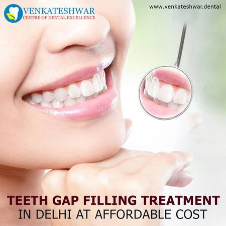 Schedule Your Appointment for Teeth Gap Filling Treatment in