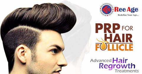 PRP treatment for hair regrowth at Bangalore