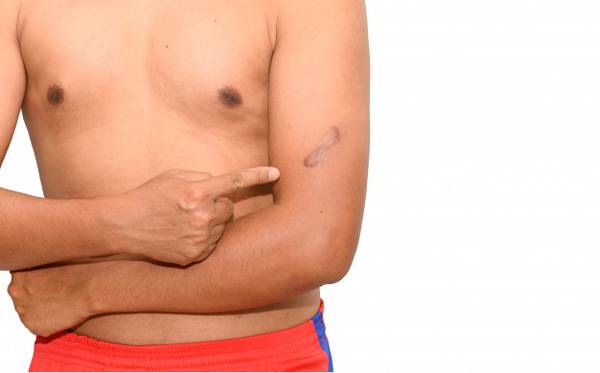 Get Rid of Your Keloid|Padanjali Ayurvedics