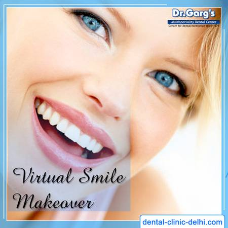 Affordable Virtual Smile Makeover in Delhi