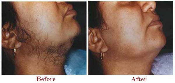 Get up to 50% Discount on Laser Hair treatment in Delhi