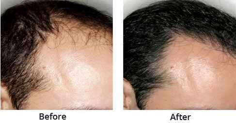 Best Hair Transplant Clinics in Chandigarh - Book