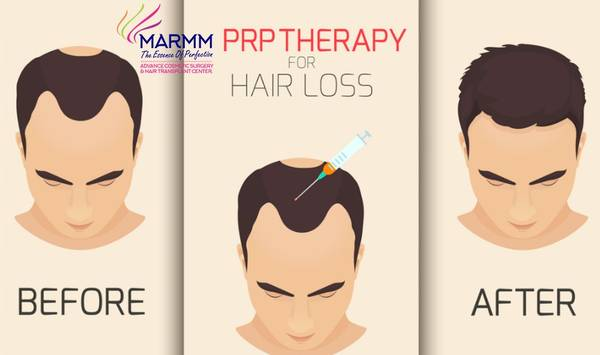 How PRP Therapy An Effective Hair Loss Solution?