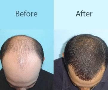 Best Hair Regrowth Treatment in Rajouri Garden