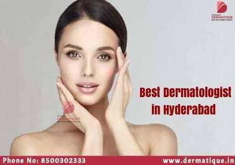 Best Dermatologist in Banjara Hills for Skin and Hair