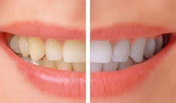 A Complete Smile Makeover at Global Dental Centre Indore