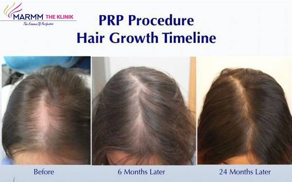 PRP Hair Loss Treatment- Regrowing Hair Without Surgery