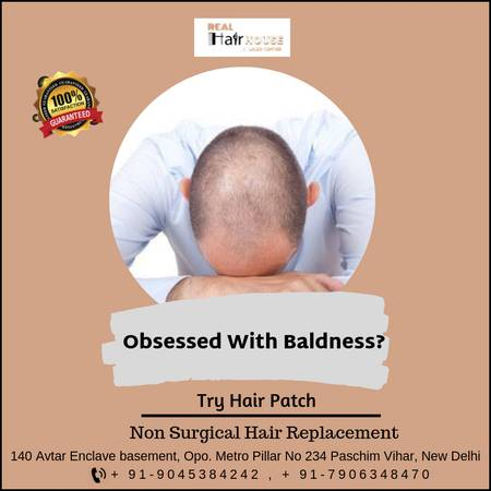 Best Anti Hair Loss Treatment
