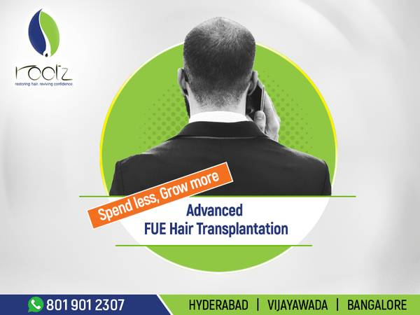 Fue hair transplant |Hair transplant before and after| Rootz