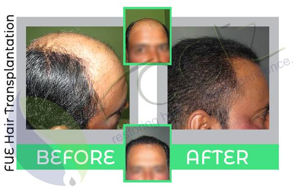 Hair transplant in Bangalore | Hair loss treatment
