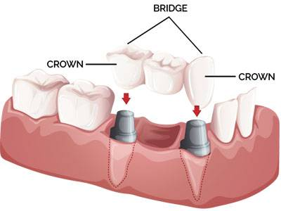 Find one of the Best Dental Clinic in South Kolkata