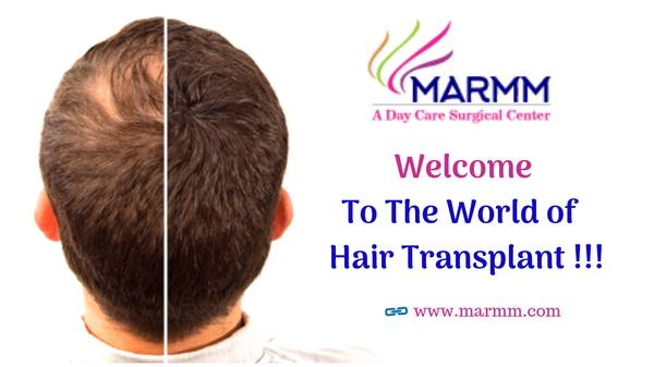 Hair Transplant in Bhopal: Ask for the expert Advice