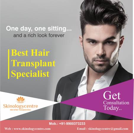 FUE Hair Transplant in Bangalore | FUE Hair Transplant Cost