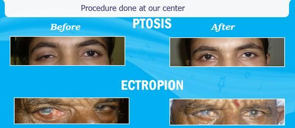 Eye hospital and Ophthalmologist in Ahmedabad   Navkar