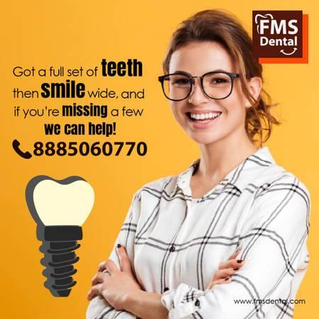 Best Dental Clinic In Jubilee Hills   Dental Implant