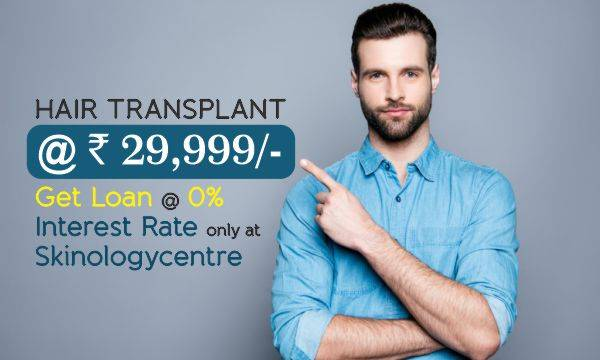 Hair Transplant - What is the Cost of Hair Transplant in