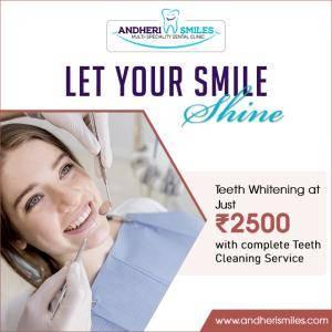 Andheri smiles Teeth Whitening deal