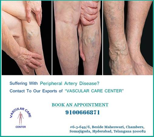 Hospital | peripheral artery disease treatment in Hyderabad