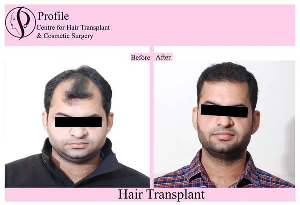 Hair Transplant Cost in Ludhiana