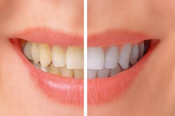 why go to a dental clinic in mumbai during festive times