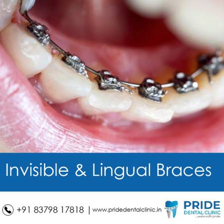 Orthodontist in Navi mumbai | Pride Dental Clinic in