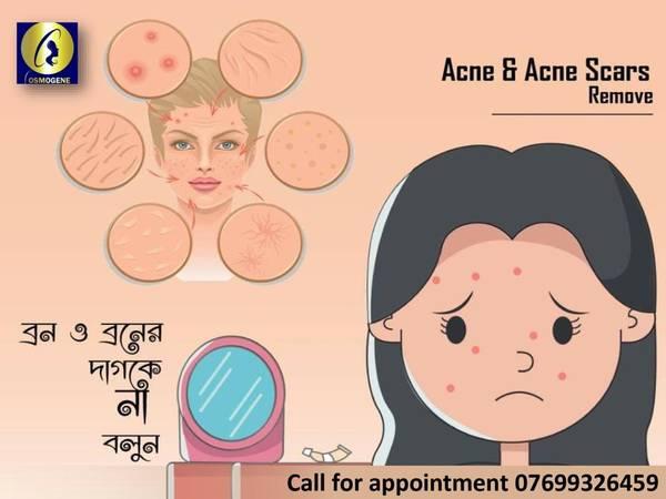 acne treatment in Kolkata, acne scar removal in Kolkata