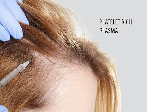 Best prp hair treatment in Noida | calee clinic