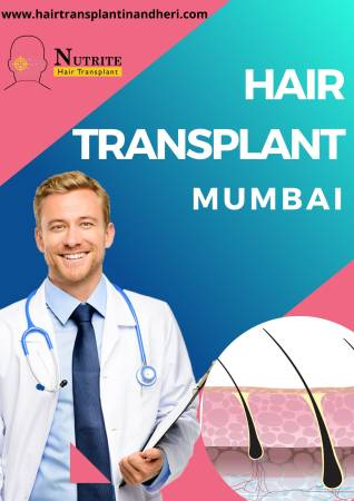 Hair Transplant - Want to Have Beautiful Bouncy Hair?
